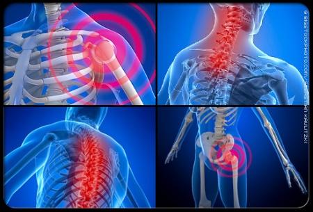 fibromyalgia-s1-photo-of-pain-locations